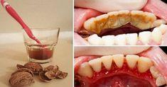 Коричневый или желтый налет на зубах можно удалить дома! Зубной камень — распространенная проблема, и современная стоматология предлагает множество способов его устранения. Но существует метод, который работает не хуже, приЧитать полностью… Продолжить чтение...
