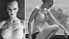 A former supermodel who beat breast cancer has bravely revealed the results of her double mastectomy in topless photo shoot.