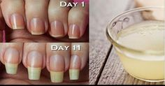 Tips To Grow Your Nails Longer, Faster http://u8274p9189.trendingbuzzz.com/tips-to-grow-your-nails-longer--faster/86972 @ilykenet
