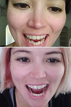 Get clear braces without in-office visits for thousands less than a traditional orthodontist. Get started with a free scan at a Candid Studio. Skin Care Regimen, Skin Care Tips, Clear Aligners, Teeth Straightening, Scaly Skin, Face Scrub Homemade, Minimal Makeup, Moisturizer With Spf, Beauty Hacks
