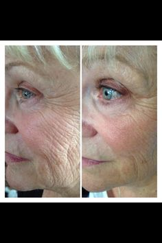 Before and after picture! Customer using Nerium www.rstibbens.nerium.com