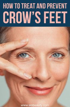 Simple ways to prevent crow's feet, wrinkles and lines round your eyes to achieve a more radiant complexion - Antiaging skincare Under Eye Wrinkles, Prevent Wrinkles, Best Skin Care Routine, Skin Care Tips, Anti Aging Tips, Anti Aging Skin Care, Wrinkle Remedies, Crows Feet