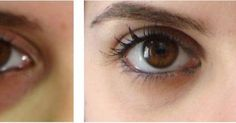 How to deal with the unsightly under-eye circles successfully? Read on.