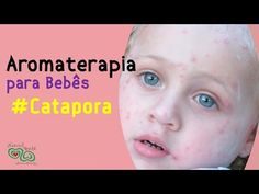 Catapora - Aromaterapia - YouTube