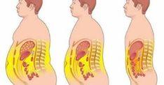 Comment perdre le gras du ventre rapidement !