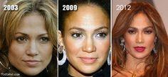 Jennifer-Lopez-Plastic-Surgery-Before-After