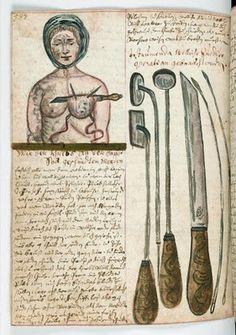 Ilustración de una mujer operada del pecho, acompañado de un primer plano de los instrumentos quirúrgicos utilizados (1675). Pertenece a un compendio de la medicina popular y la cirugía en alemán de un monasterio de franciscanos, probablemente en Austria, o el sur de Alemania.  Wellcome Library, Londres