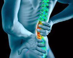 Receita de remédio natural para dor na coluna | Cura pela Natureza.com.br