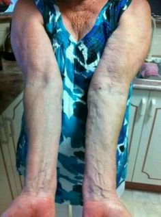 Body Spa results Ageloc Galvanic Spa, Body Spa, Anti Aging, Nu Skin, Beauty, Wellness, Google Search, Diamond, Products