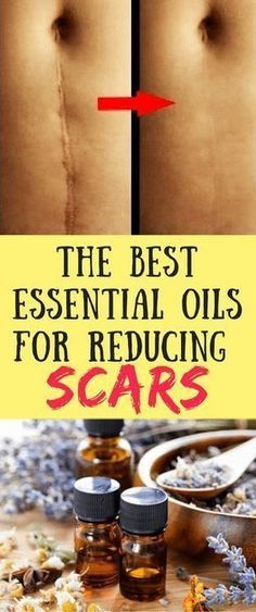 Regardless of age, most of us have collected a good collection of scars, some from acne, some from burns, some from scrapes, and others from surgery incisions. Once the skin is seriously damaged, there is unfortunately no magic bullet that can make the scars disappear completely. But essential oils can help you to reduce and …