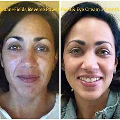 "Whoa!!  Check out Ilena Pena's AMAZING results using Rodan + Fields Award Winning Pemium skincare!   Here is what she said:  ""This is what taking care of your skin looks like... Before R+F, I washed my face with soap and used Oil of Olay. First picture was taken 3 months ago, makeup free - Yikes! Second picture: foundation free, filter free!  Uneven skin tone: GONE Foundation: GONE Dark Circles: GONE Most of my wrinkles: GONE I used the Eye Cream and AMP M"