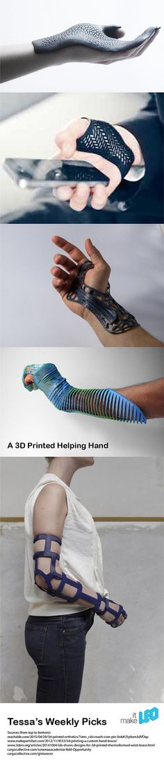 A 3D Printed Helping Hand - 5 Designs of 3D Printed Hand Braces - Tessa's Weekly Picks - Make it LEO