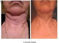 0bb6718b75 LIQUID BIOCELL Active Joints. Amazing Skin. Before After Pictures   www.friendsresults. Anti Aging ...