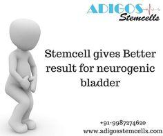 #neurogenic #bladder #neurogenicbladder #stemcells #stemcellstreatmentforneurogenicbladder #stemcellsTreatmentinmumbai #stemcellsTreatmentinmumbai #adigosstecells