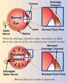Most common type of glaucoma is Open Angle Glaucoma. The structures of the eye appear normal, but fluid in the eye does not flow properly through the drain of the eye, called the trabecular meshwork.