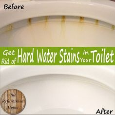 How to Truly Get Rid of Disgusting Hard Water Stains in your Toilet