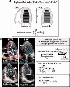 right outflow tract ultrasound Arteries Anatomy, Cardiac Sonography, Basic Anatomy And Physiology, Medical Engineering, Ultrasound Technician, Interventional Radiology, Heart Valves, Cardiac Nursing, Medical Examination