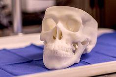 3D Printed Skull Models Make Nasal Endoscopy Easier on Everyone