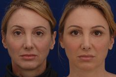 Facial fillers before and after photos cheek fillers under eye filler upper eyelid filler Cheek Fillers, Facial Fillers, Eyelid Lift, Brow Lift, Liquid Facelift, Under Eye Fillers, Non Surgical Facelift, Facial Rejuvenation, Big Forehead