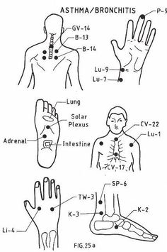 These acupressure / acupuncture points are used in Traditional Chinese Medicine to treat asthma and bronchitis. Explore acupressure for asthma & bronchitis. Acupressure Therapy, Acupressure Massage, Asthma Relief, Asthma Remedies, Allergy Asthma, Reflexology Points, Acupuncture Points, Traditional Chinese Medicine, Alternative Health