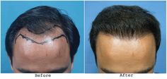 Facts you must know about hair transplant surgery.