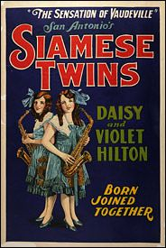 """The Hilton sisters were very famous in their day as they played not in side shows but actually on the vaudeville stage.  They were both said to be talented and attractive.  They appeared in the film """"Freaks"""" in the 1930s as well."""