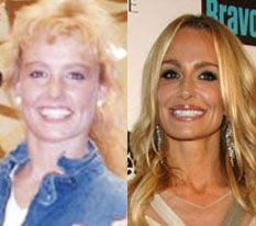 Real Housewives of Beverly Hills cast member, Taylor Armstrong, is no stranger to plastic surgery. This before and after photo shows the TV star as an all natural, before the use of any Botox, and after. Taylor Armstrong, Actress Without Makeup, Plastic Surgery Photos, Celebrities Before And After, Operation, Housewives Of Beverly Hills, Real Housewives, Feel Better, Actresses