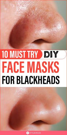10 Must Try DIY Face Masks For Blackheads