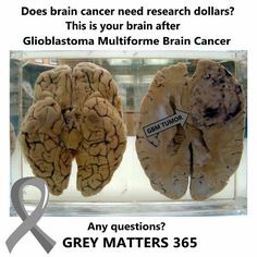 It's amazing to see this and know that brain cancer still doesn't rate enough research dollars. #greymatters #gbm #braincancersucks