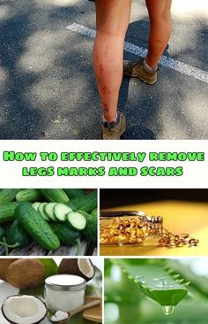 How to effectively remove legs marks and scars