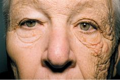 Aging Effects of Sun on Skin. This 69 year old man was a truck drver for 28 years. Constant exposure to the sun from the drivers side window caused him to look decades older on one side of his face. Think about this the next time when you walk into a tanning bed...