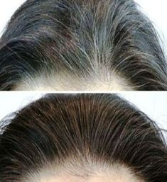 This powerful mixture successfully eliminates white hair. In addition, it is a potent remedy that also improves skin health and vision. In order to prepare it and feel its benefits, you will need: 200 grams of flaxseed oil 3 cloves garlic (small) Grey Hair, White Hair, Black Hair, Beauty Care, Beauty Hacks, Smoothie Vert, Hair Remedies, Unwanted Hair, Flat Twist
