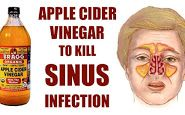 Sinusitis is an inflammation of the tissue and membrane and this infection is characterized by severe headaches, fevers, and thick mucus that blocks the face area, leading to pain. Chronic sinusitis can last for 3 months, and even longer. Sinus Remedies, Health Remedies, Diabetes Remedies, Severe Headache, Organic Apple Cider Vinegar, Nasal Congestion, Sinus Infection, Military Diet, Losing 10 Pounds