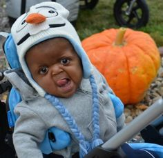 """Despite his many wonderful qualities, our baby garners many stares and rude comments. One of the medical professionals he recently met with remarked how he looked like a """"pug."""""""