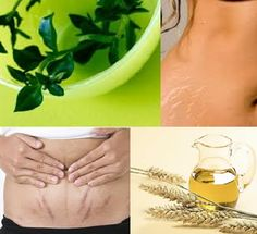 Home remedies not only help you in dealing with stretch marks in a natural manner but also provide the skin with additional benefits that in the long run give you a beautiful, healthy, smooth and a firm skin. http://www.nostretchmarks.net/blog/fade-stretch-marks/