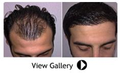 Baldness gets a permanent Solution at Dubai Cosmetic Surgery