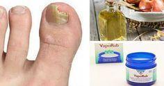 L'onicomicosi, nome medico della condizione che causa i funghi delle unghie, si scatena quando le [Leggi Tutto...]