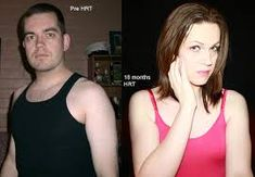 Image result for mtf transition before and after