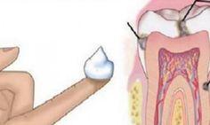 Aucun dentiste ne vous révélera ceci: comment combattre les caries à la maison.