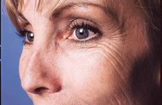 Botox Cosmetic Treatment For Wrinkles Lip Wrinkles, Prevent Wrinkles, Botox Cosmetic, Laugh Lines, Eye Wrinkle, Wrinkle Creams, Crows Feet, Wrinkle Remover, Face And Body