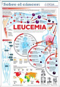 Lo que quizá no sabías de la leucemia - Investigación y Desarrollo