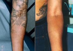 16 Best Tattoo Removal Scar Reduction Images Tattoo Removal Scars