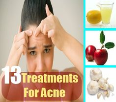 Acne is a common skin condition. It is caused by irregular shedding of dead skin cells, consumption of fried food items and birth control pills, ...
