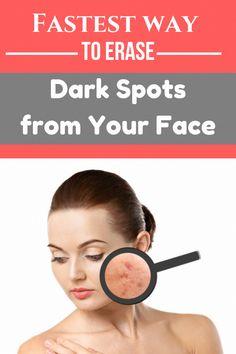Ways to get Rid Of Dark Spots on Deal with Overnight #BrownSpotsBetweenTeeth #BrownSpotsOnBodySkin #CanBrownSpotsBeRemoved #BrownSpotsOnSkin