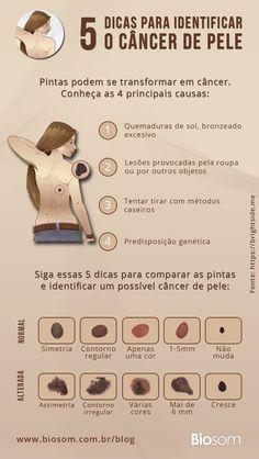 Clique na imagem e saiba mais sobre as causas, sintomas e tratamentos do câncer de pele #câncerdepele #câncerdepeletratamento #cancerdepelecausas #saúde