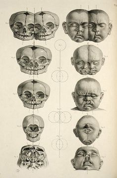 Dissecting a Human Head Through Anatomical Illustrations Macabre - Cabinet of CuriositiesMacabre - Cabinet of Curiosities Anatomy Head, Anatomy Drawing, Anatomy Art, Skull Anatomy, Human Anatomy, Animal Anatomy, Illustrations Médicales, Medical Illustrations, Medical Drawings