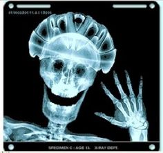 Bike helmet X-ray.wear your helmet! Cycling Quotes, Cycling Art, Cycling Bikes, Cycling Jerseys, Mtb Bike, Bicycle Helmet, Bike Helmets, Cycling Helmet, Bicycle Safety