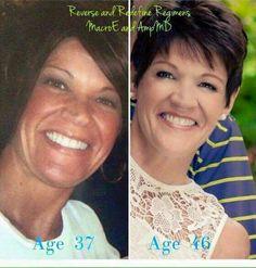Turning back the aging clock with Rodan + Fields! Kristens.myrandf.com