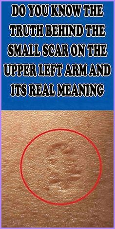 Do You Know The Truth Behind The Small Scar On The Upper Left Arm And Its Real Meaning - Have you ever wondered what that small scar on the upper left arm is? You might have seen it on som - Medicine Book, Herbal Medicine, Natural Medicine, Cannabis, 100 Pour Cent, Know The Truth, Natural Living, Natural Life, Natural Skin