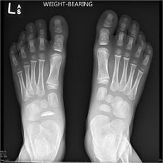 The left navicular is small and sclerotic. Features here are consistent with avascular necrosis of the navicular - Kohler's disease.